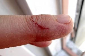 Open wound on finger.